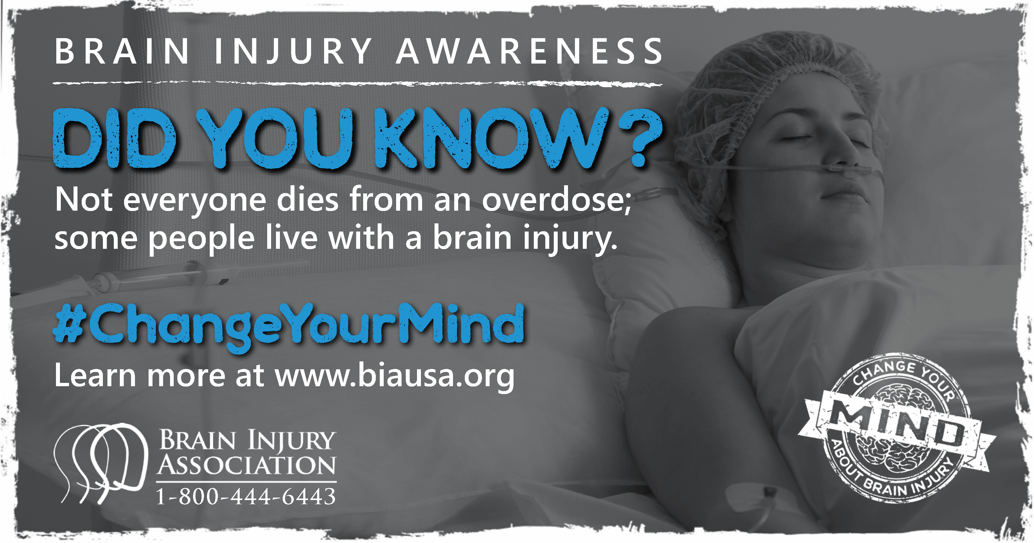 Not everyone dies from an overdose; some people live with a brain injury.