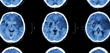 BIAA Raises Awareness of Acquired Brain Injury During Stroke Month